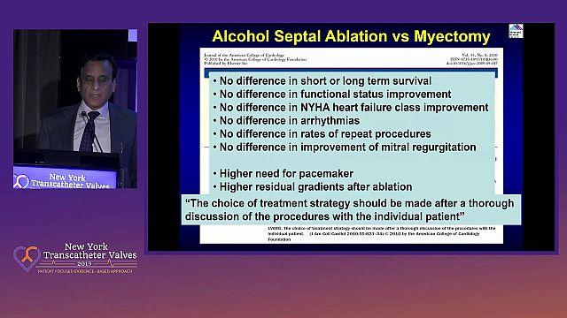 Alcohol Septal Ablation for HOCM: Case Selection